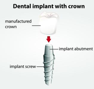 rsz_dentalimplant