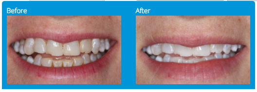 teeth-whitening-before-after-rancho-bernardo