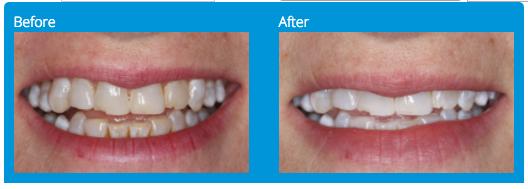 teeth-whitening-before-after-rancho-bernardo