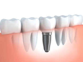 san-diego-dental-implants (1)