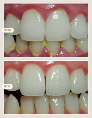 periodontal disease treatment results