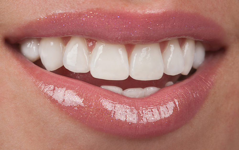 Beautiful smile with porcelain veneers